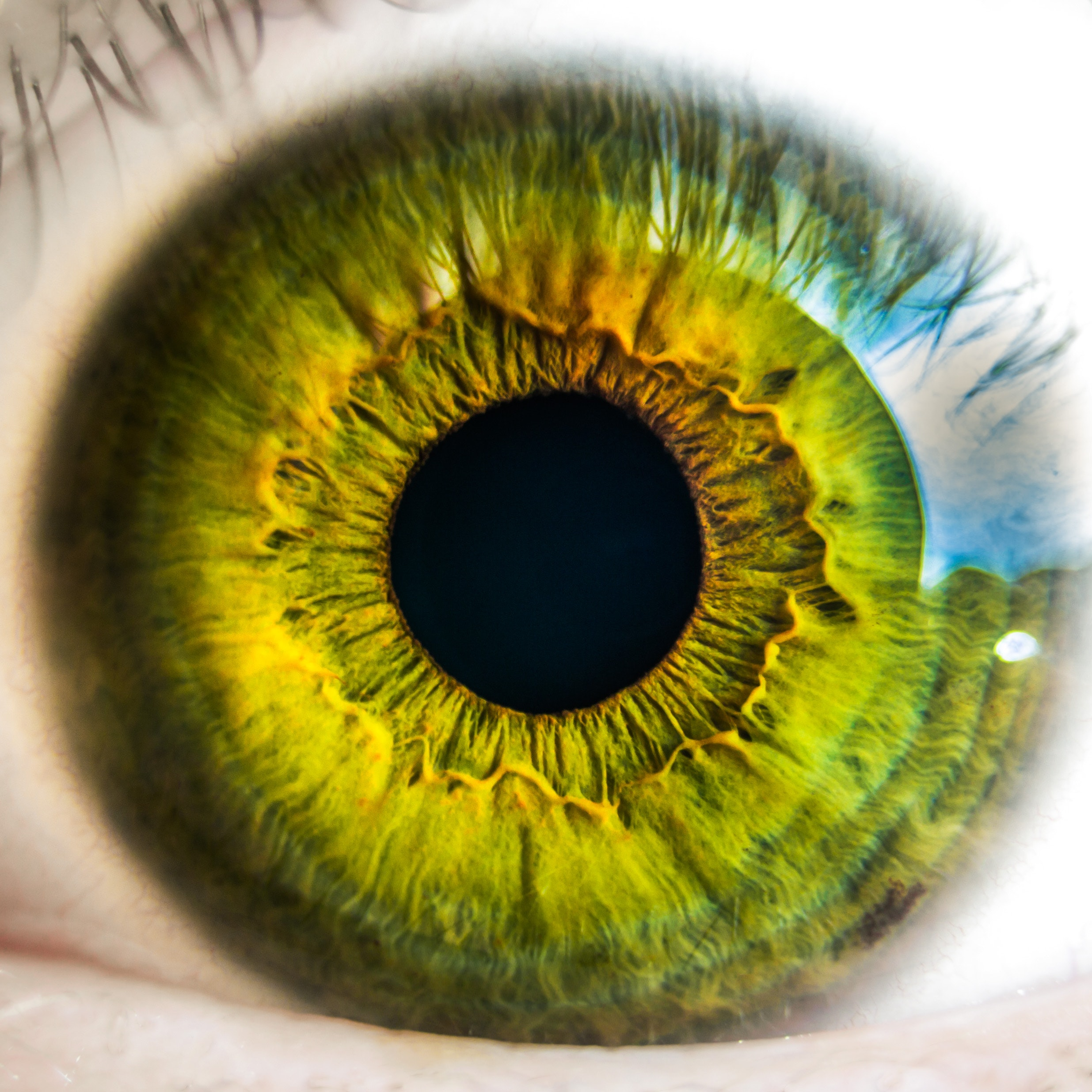 Eye Health Calculator: what is the outlook for your vision?